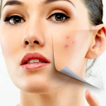 Acne Skin Treatments